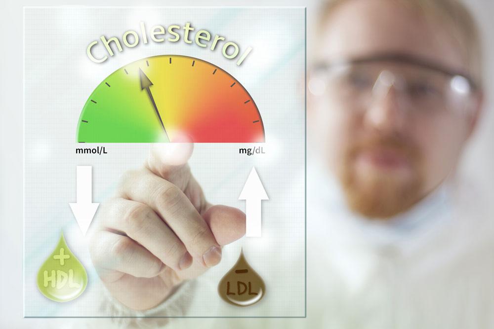 Donate plasma Case Studies - Cholesterol